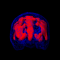 Obsessive Compulsive Disorder  OCD    myVMC SciELO CASE STUDY