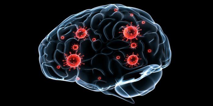 brain-mold-8x4