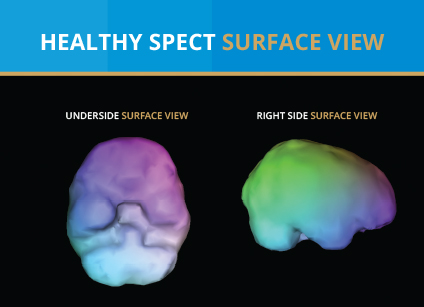 Why SPECT | The Science | Amen Clinics