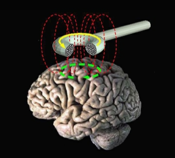 Transcranial_Magnetic_Stimulation-TMS_Brain-Injury_Depression