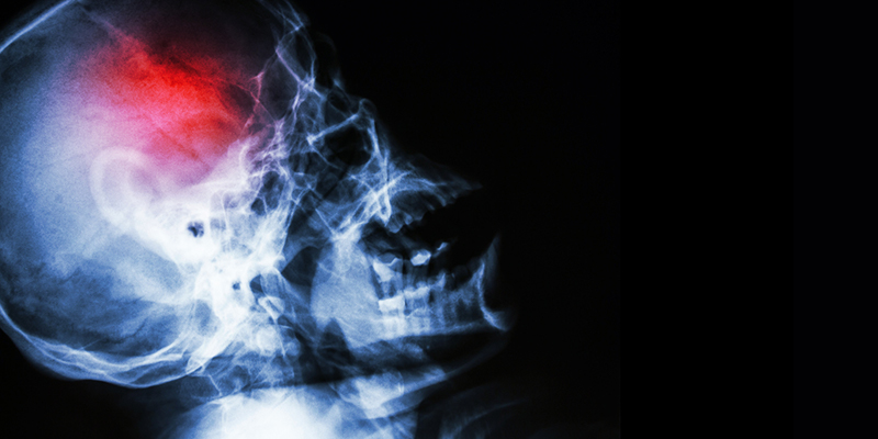 Blog-The Seriousness of Concussions & TBI