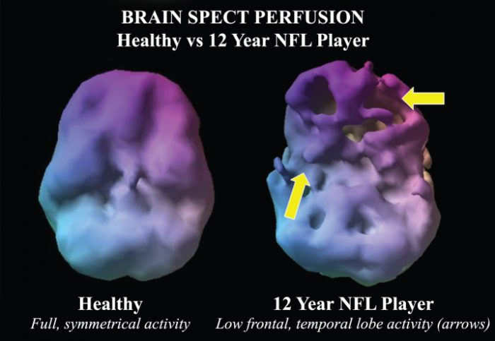Perfusion Neuroimaging Abnormalities Alone Distinguish National Football League Players from a Healthy Population