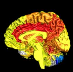 women-more-active-brains