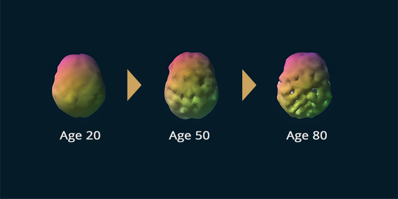 Sample brain scans of a 20, 50 and 80 year old persons