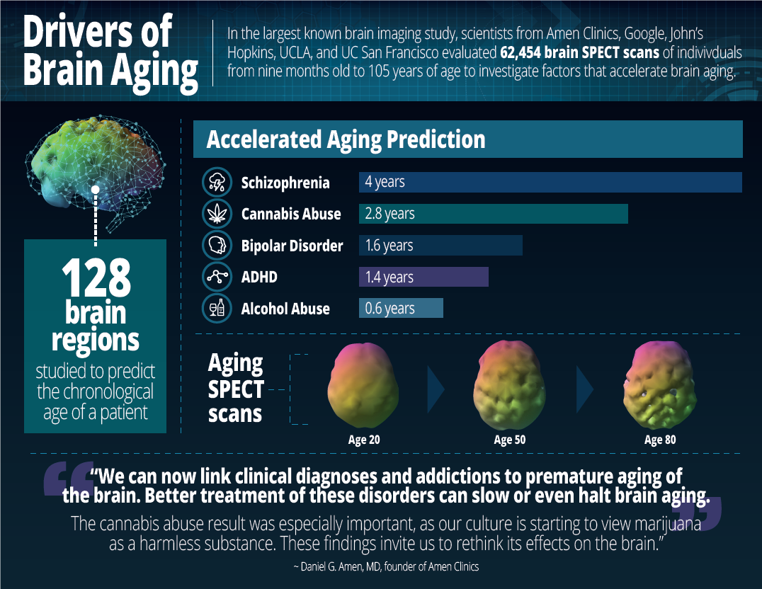 Largest Brain Study Of 62 454 Scans Identifies Drivers Of Brain Aging Amen Clinics