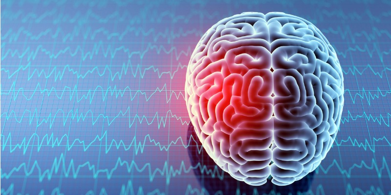 How Does SPECT Differ from Other Brain Scans?